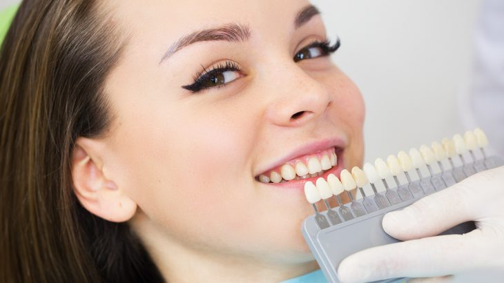 歯の「セルフホワイトニング」のメリット